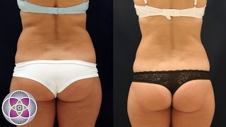 Non Surgical Laser Liposuction Fat Removal Body Sculpting