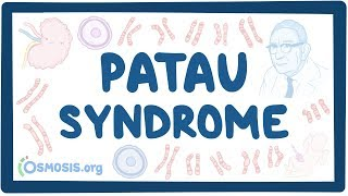 Download Video Patau Syndrome - causes, symptoms, diagnosis, treatment, pathology MP3 3GP MP4