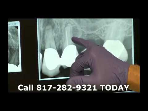 part-6-dr.-eberlein-dds-midcities-dental-discovers-untreated-root-canal-on-x-rays