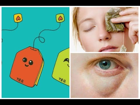 How To Remove Eye Bags from tea begs| Dark circles| swollen Eye| Puffiness|