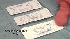 hqdefault - Allergic Diabetic Vicryl Sutures