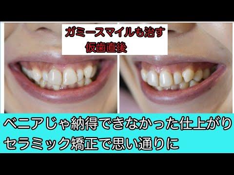 歯が気にならなくなって笑顔が増えました