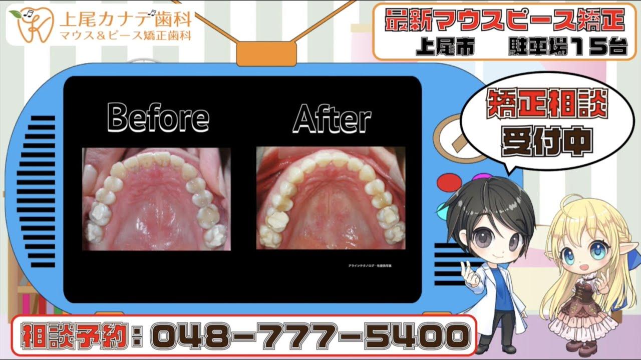 上尾市の歯医者が紹介する最新マウスピース矯正・パート137   上尾カナデ歯科・インビザライン