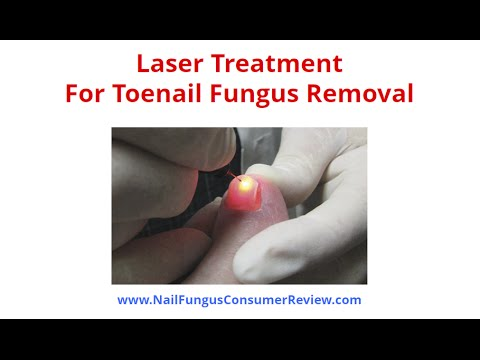 Laser Treatment For Toenail Fungus Removal – Is It Your Best Option?