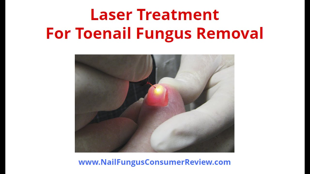 Laser Treatment For Toenail Fungus Removal Is It Your Best