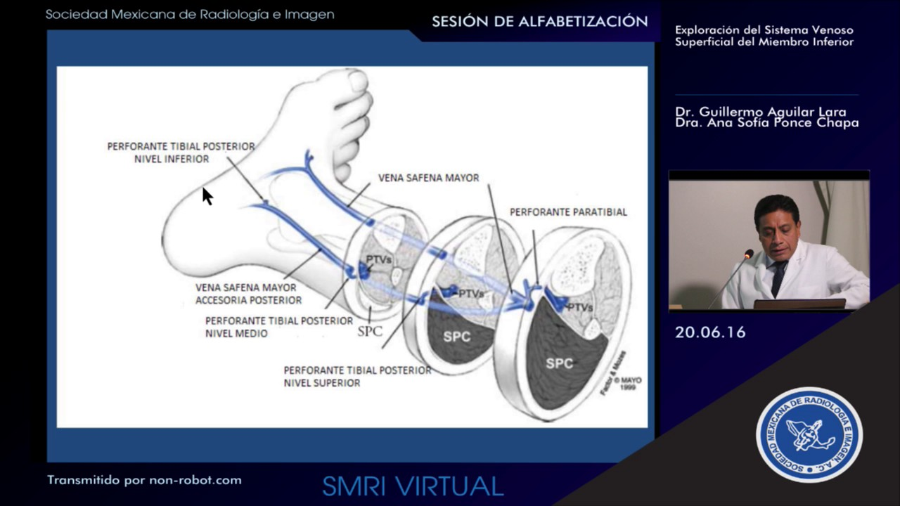 Ecografía del sistema venoso superficial del miembro inferior - YouTube