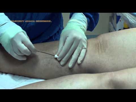 Varis tedavisinde radyofrekans (RF) yöntemi