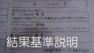 チャンネル登録はこちらから ↓ https://www.youtube.com/channel/UCIw9T...