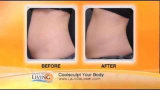 CoolSculpting for Fat Bulges La Jolla, CA Thumbnail