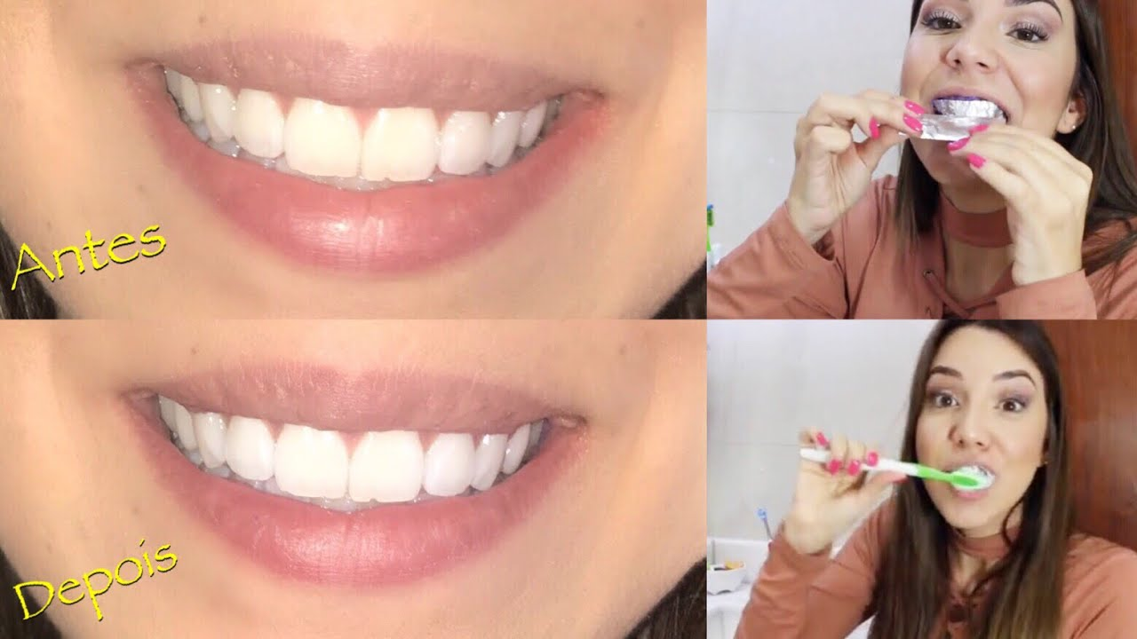 Receita Caseira Que Realmente Funciona Para Clarear Os Dentes Youtube