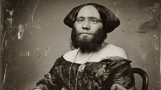 Surprising Story Of The Bearded Woman