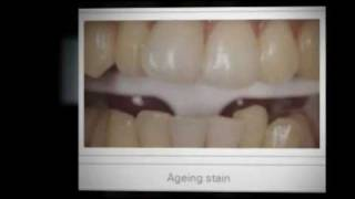 Dentist Colchester-Teeth Whitening Colchester WY10
