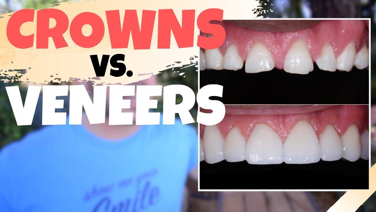 Dental CROWNS vs. Porcelain VENEERS  Is the Dental Veneers Procedure Worth  It?!?