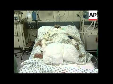 Palestinian woman killed, four injured in airstrike