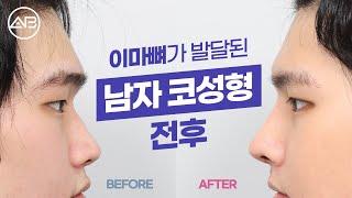 남자 코성형 리뷰 ㅣ 눈썹뼈가 돌출됐다면? 남자 코수술…