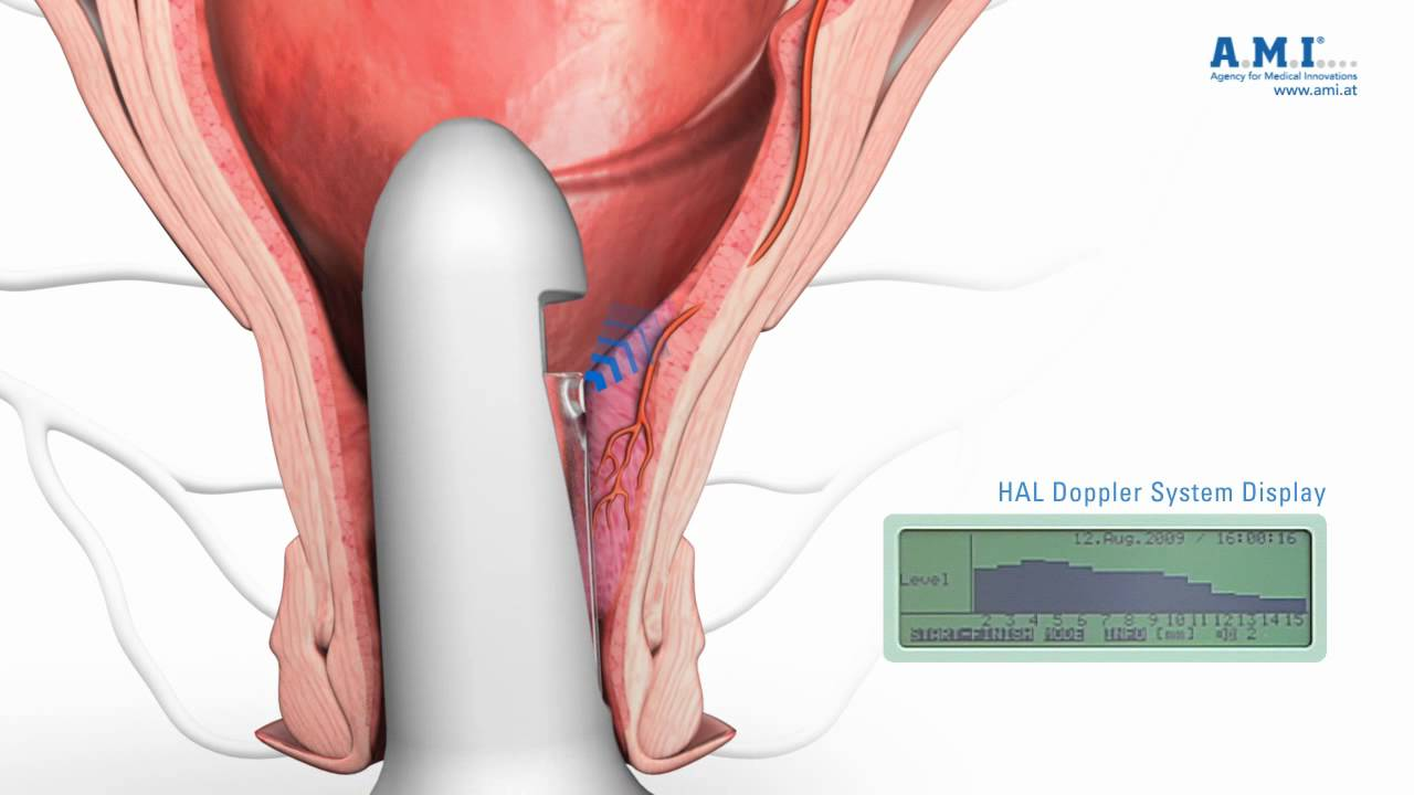 operating on anal piles