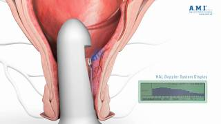 Repeat youtube video piles: HAL Hemorrhoidal Artery Ligation - new fast and painless treatment of haemorrhoids