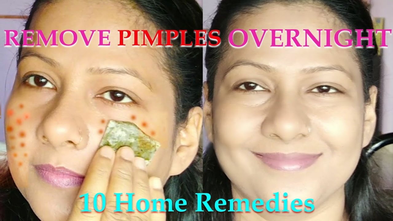 how to remove all pimples in one day