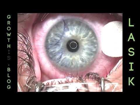 LASIK: A Patient's Perspective