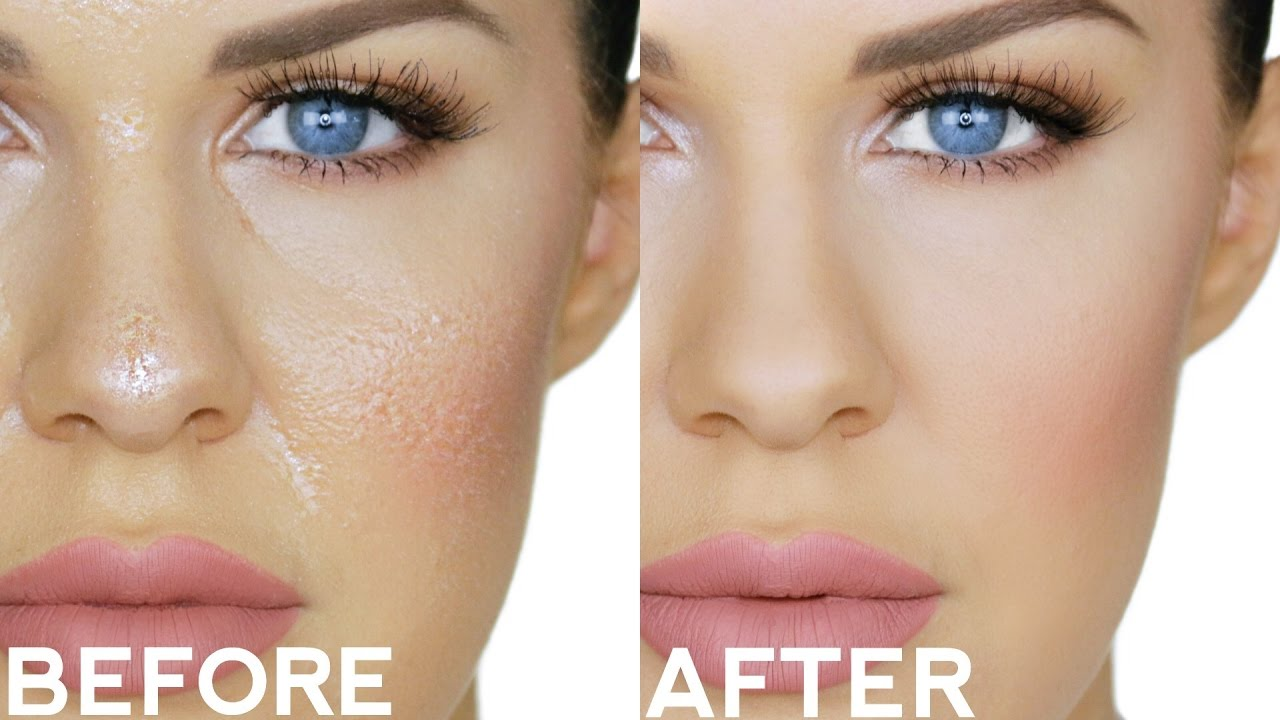 Image result for oily skin before and after