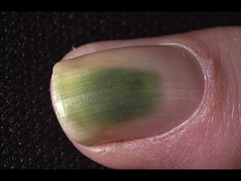 The Easy Green Toenail Fungus Cure!