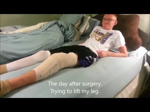 My ACL and Meniscus Reconstruction Recovery and Highlights of My First Game Back From Injury.