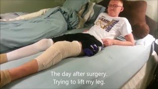 my acl and meniscus reconstruction recovery and highlights of my first game back from injury