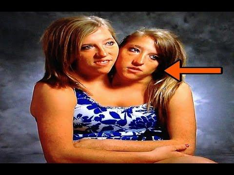 एक लड़की और उसके सिर दो कुदरत का अनोखा करिश्मा || conjoined twins abby and brittany