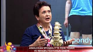 FİZYOTERAPİ GÜNDEMİ 23 MART 2018 ANKİLOZAN SPONDİLİT   ROMATİZMA