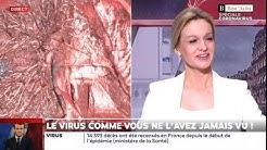 Docteur Rodolphe Gombergh filmé le virus avec ses scanners et logiciels