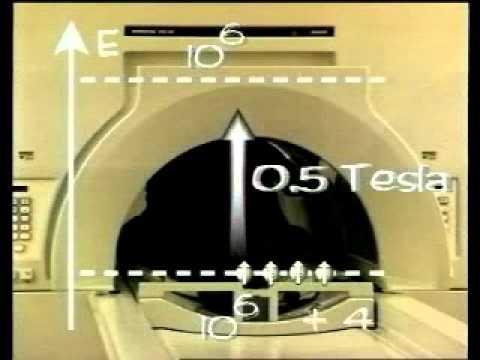 physique d'IRM : imagerie par résonance magnétique (la suite en bas)