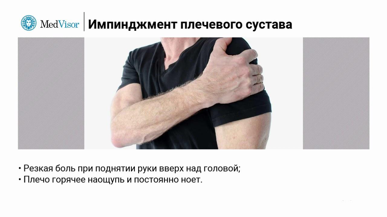 Импичмент-синдром (импинджмент) плечевого сустава, слабость и боль в плече