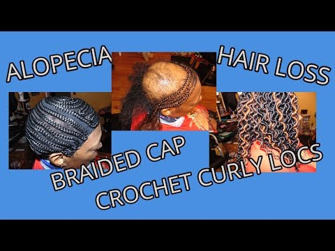 alopecia/hair-loss-protective-hairstyle-with-up-to-date-braided-cap-for-women
