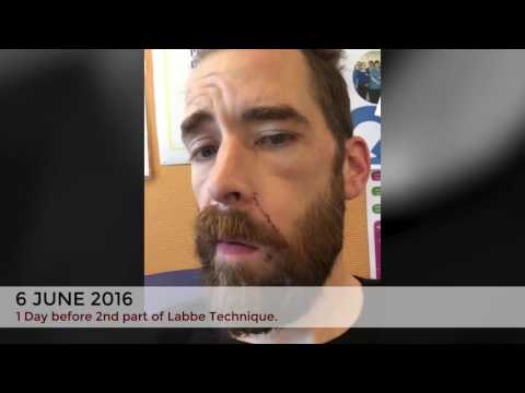 Eoin acoustic neuroma facial palsy recovery