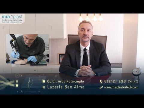 Lazerle Ben Alma - Op. Dr. Arda Katırcıoğlu