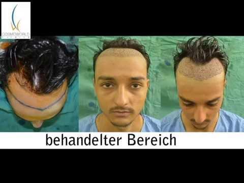 Haartransplantation Deutschland, München, Berlin, Frankfurt, Hamburg, Köln, Dortmund