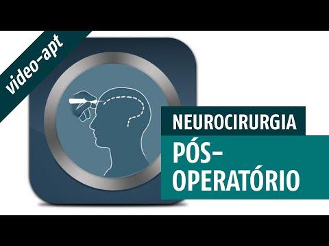 pós-operatório-em-neurocirurgia-(-guia-de-neurocirurgia-intensiva)