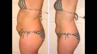 Colon Cleanse weight loss: Before & After