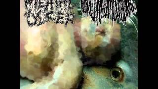 Hydropneumothorax - Disintegrating Capillarys