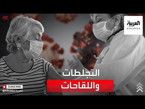 ما سر تعرض المرأة لتجلطات دموية بعد التطعيم بلقاحي أسترازينيكا وجونسون آند جونسون؟