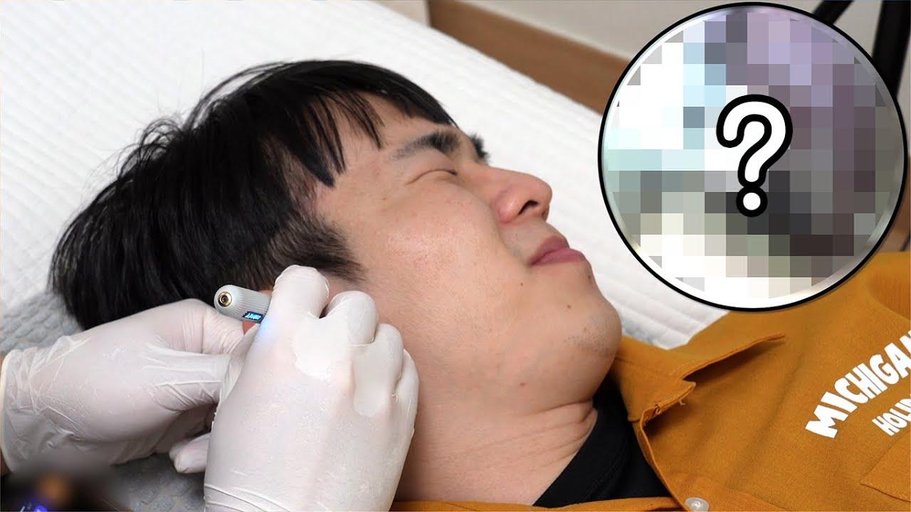 1달간 귀안파고 찾아간 보면서 하는 귀청소 - ASMR