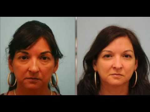 Rhinoplasty and Fat Grafting Testimonial