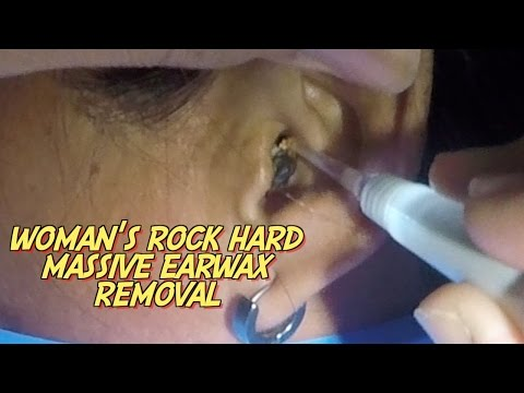 Thumbnail: Woman's Rock Hard Massive Earwax Removal