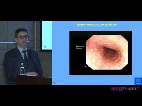 03 Функциональная диспепсия – диагноз исключения  Римские критерии   IV с точки зрения видеоэндоскоп