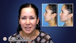 Y LIFT® 2016 - Maria | Instant, Non Surgical Facelift
