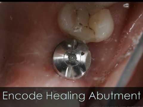 Encode Biomet 3i Dental Implant System/ Implante Dental- Puerto Rico