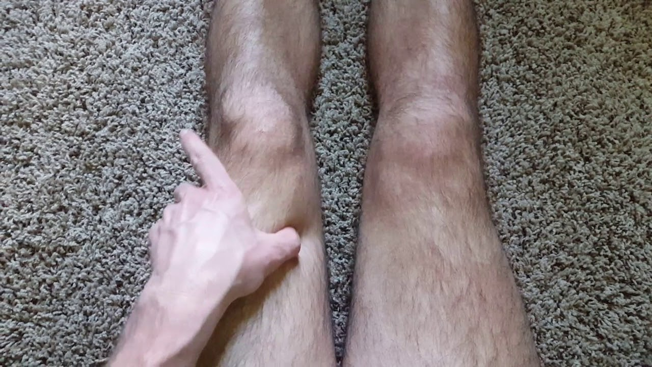 Torn ACL and meniscus  2 months no surgery  Recovery after knee injury  ACL  reconstruction