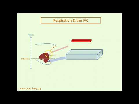 IVC collapse animation