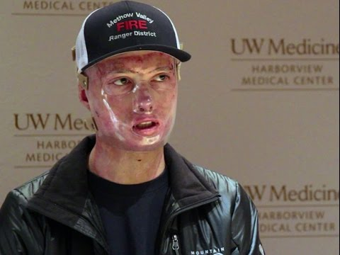 Firefighter burned in fatal. Wash. wildfire leaves hospital