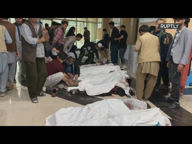 <span class='as_h2'><a href='https://webtv.eklogika.gr/' target='_blank' title='Αφγανιστάν: Στους 50 οι νεκροί από τις βομβιστικές επιθέσεις στην Καμπούλ'>Αφγανιστάν: Στους 50 οι νεκροί από τις βομβιστικές επιθέσεις στην Καμπούλ</a></span>
